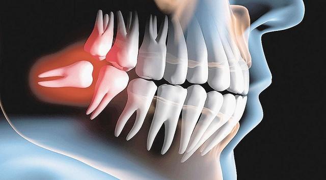 Răng khôn mọc ngầm gây ra rất nhiều phiền toái