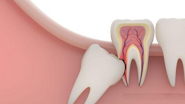 Răng không thật sự rất ngu đúng không bạn