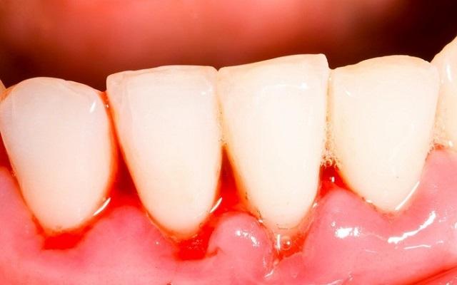 Triệu chứng khi bị viêm chân răng