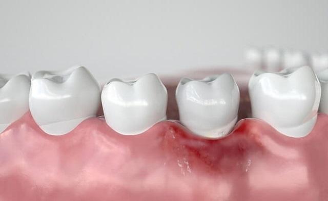 Viêm chân răng có nguy hiểm không
