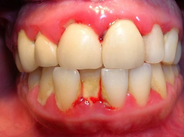 Viêm chân răng là gì?