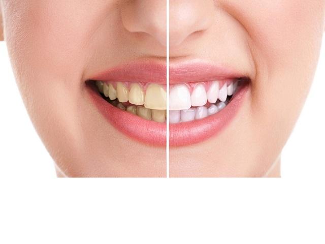 Sở hữu hàm răng trắng sáng khỏe mạnh là mong muốn của rất nhiều người. Tuy nhiên không phải ai cũng dễ dàng có được hàm răng sáng trắng.