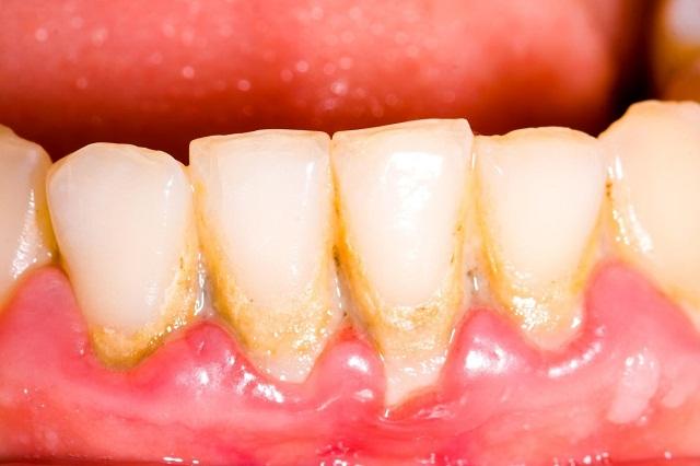 Lấy cao răng định kỳ là điều vô cùng cần thiết