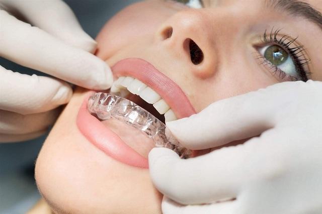 Lưu ý sau khi tháo niềng răng