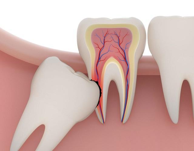 Người bị sâu răng nên tránh ăn đồ ngọt, bánh kẹo,...