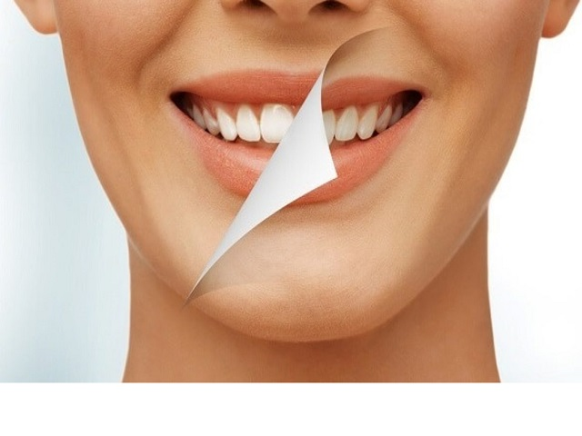 Nguyên nhân nào dẫn đến việc răng bị ố vàng, xỉn màu?
