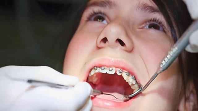 Niềng răng không gây đau đớn nhiều