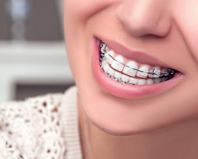 Phương pháp niềng răng
