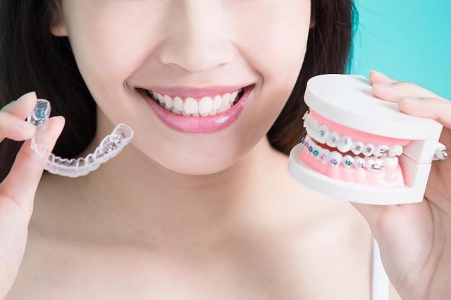 Thời gian niềng răng thường kéo dài từ 1 – 3 năm