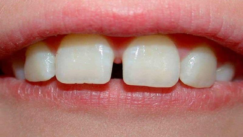 Việc dùng chỉ tơ nha khoa có làm răng bị thưa không?