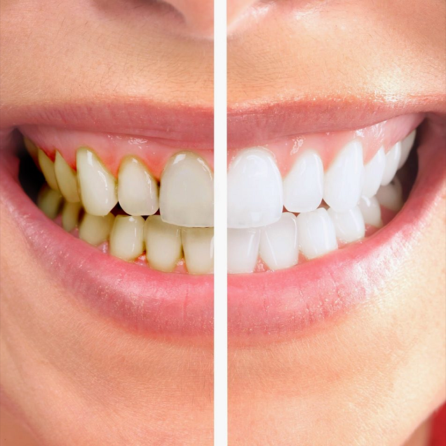 Lấy cao răng định kỳ 3 – 6 tháng