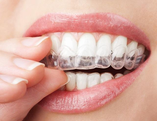 Bảo vệ khỏi những bệnh lý về răng