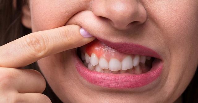 Cách phòng tránh viêm nướu răng