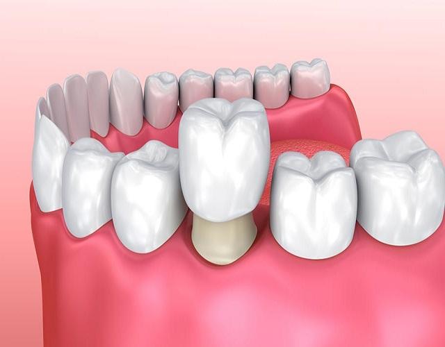 Chi phí bọc răng sứ hết bao nhiêu?