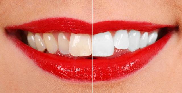 Do mất men răng