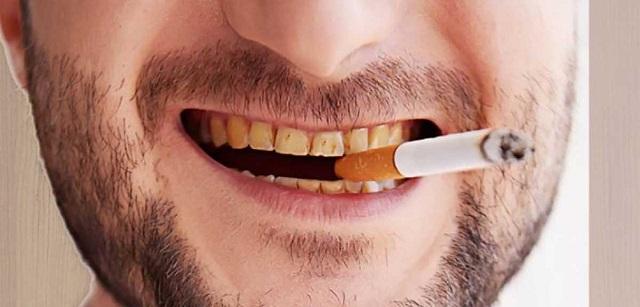 Do sử dụng thuốc lá