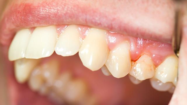 Gây ra viêm chân răng