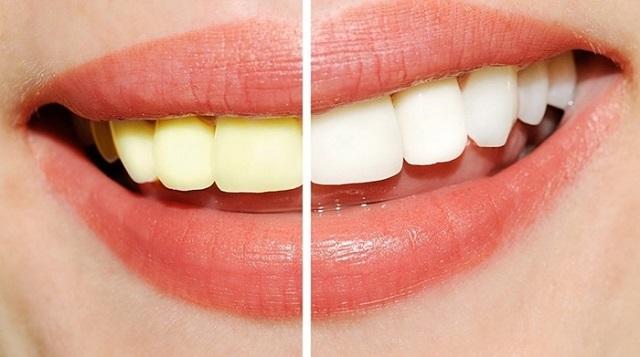 Một số lưu ý khi tẩy trắng răng