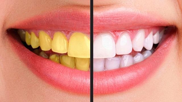 Nguyên nhân dẫn đến răng bị ố vàng