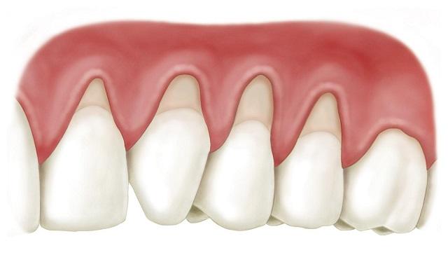 Nguyên nhân gây ra bệnh viêm nướu răng