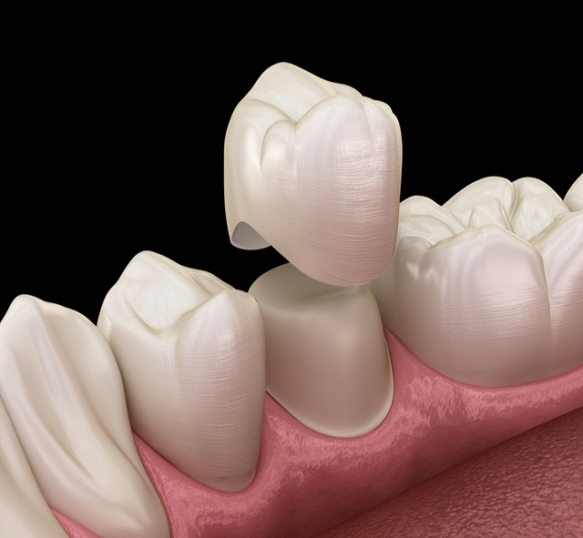 Những trường hợp  nên bọc răng sứ