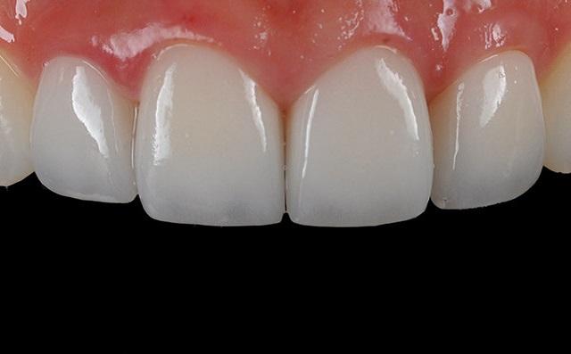 Quy trình bọc răng sứ của địa chỉ uy tín chất lượng