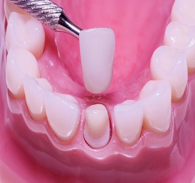Tác dụng của việc bọc răng sứ